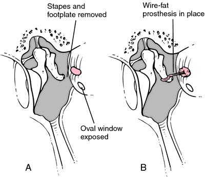 Микрохирургия уха