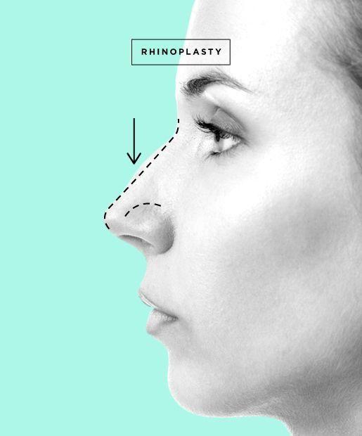 Changing the shape of the nose - rhinoplasty and rhinoseptoplasty